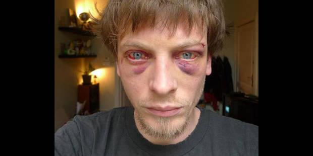 Tabassé par la police, Nicolas porte plainte - La DH