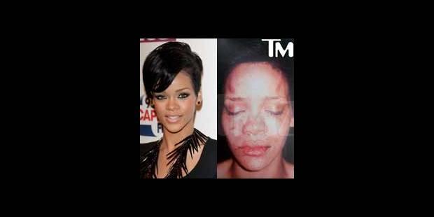 Une photo de Rihanna, maltraitée par Chris Brown, sur internet - La DH
