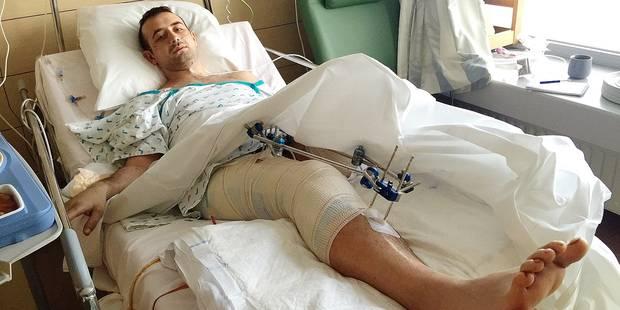 Le chauffard qui lui a arraché la jambe s'est rendu à la police - La DH