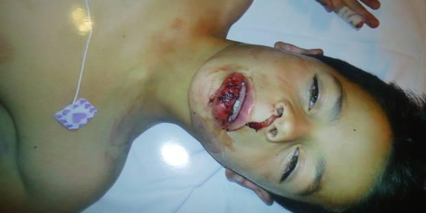 Arlon: Chahine, 7 ans, grièvement blessé après avoir été éjecté d'un manège - La DH