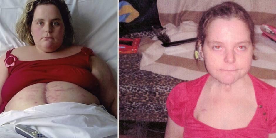 Exclusif: Deborah, morte à 29 ans d'un by-pass désastreux - La DH