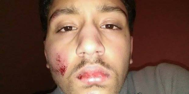 Molenbeek: la police de nouveau accusée de violences ! (PHOTOS) - La DH