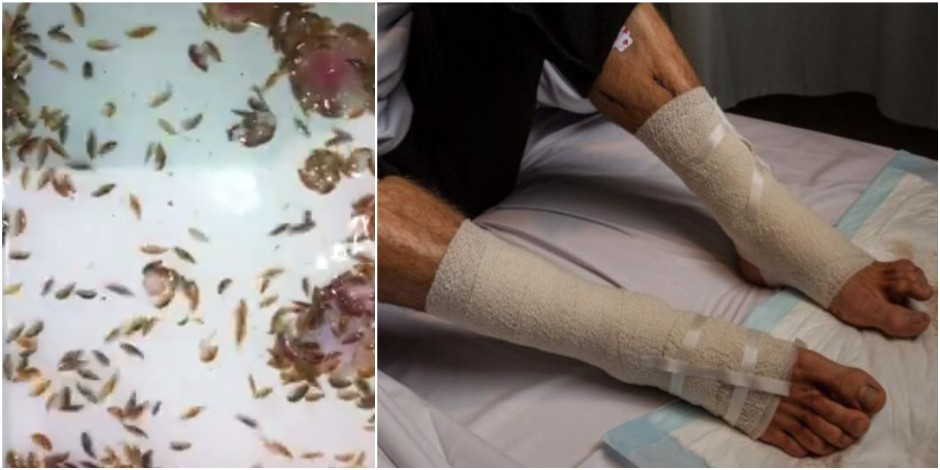 Australie : des petites créatures marines mangent les jambes d'un adolescent