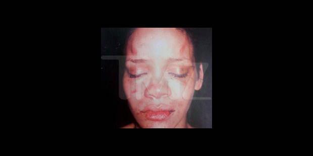 Agression de Rihanna: Chris Brown plaide coupable et évite la prison - La DH