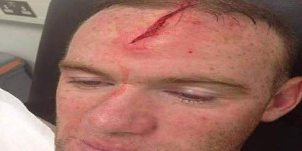 La terrible blessure de Wayne Rooney