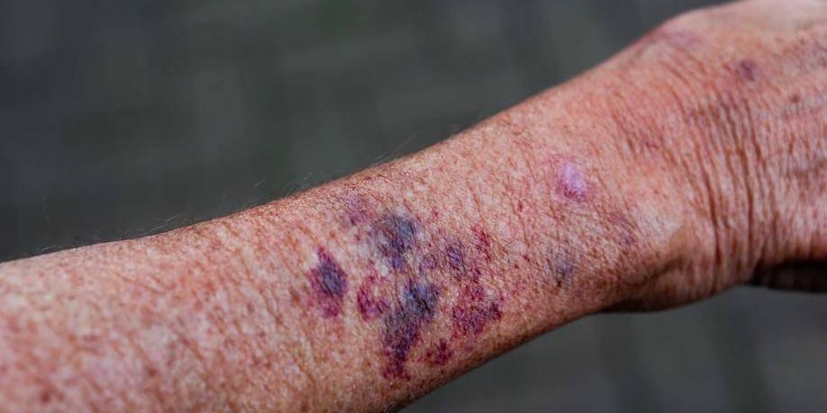 Un dentiste de 76 ans sauvagement agressé
