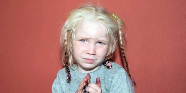 L'Ange blond albinos ? - La DH