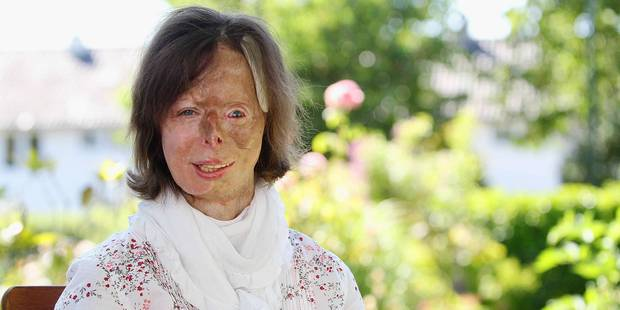 La 100e opération chirurgicale de Patricia Lefranc ! - La DH
