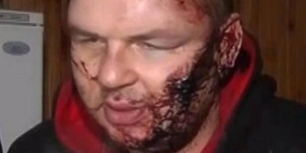 """Un manifestant ukrainien: """"Ils m'ont crucifié, m'ont coupé une oreille et tailladé le visage"""" - La DH"""