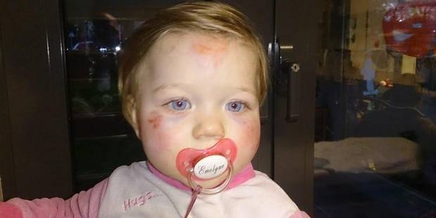 Emelyne blessée au visage à la crèche - La DH