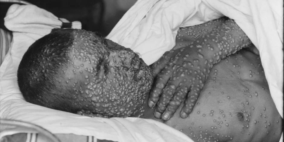 Des chercheurs tentent de tuer une maladie déjà utilisée comme arme biologique