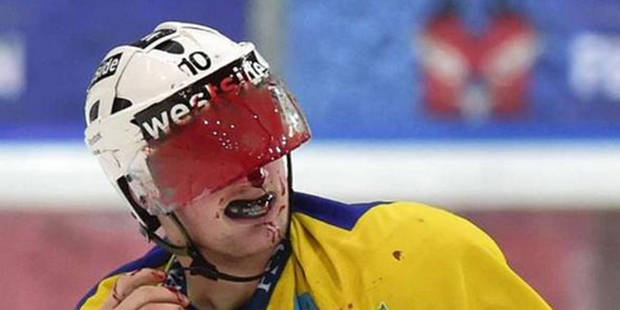 Une bagarre, du hockey sur glace... et une image choc - La DH