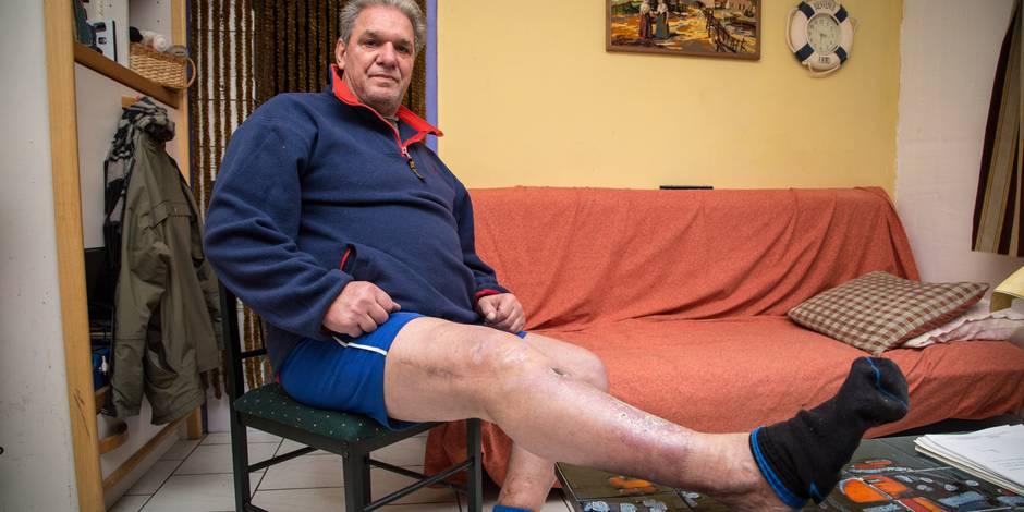 """Blessé sur son lieu de travail, il a déjà déboursé 400.000€ en frais médicaux: """"J'ai perdu 35 ans de ma vie !"""" - La DH"""