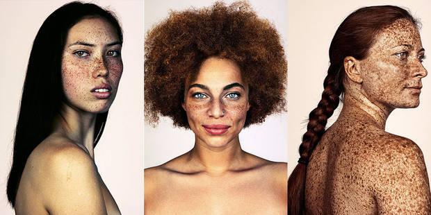 150 portraits pour mettre en valeur les taches de rousseur - La DH
