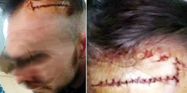 Christophe, 17 points de suture après avoir été tailladé au front - La DH