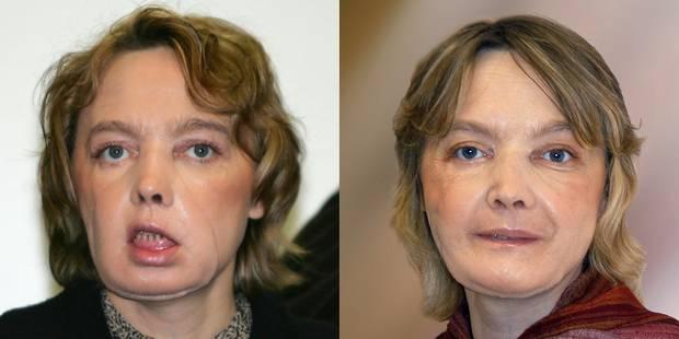 La première femme au monde greffée du visage est décédée - La DH