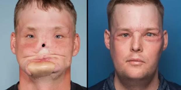 Défiguré, cet Américain a bénéficié d'une greffe de visage qui a changé sa vie (VIDEO) - La DH