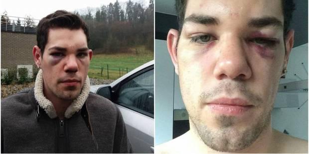 Un jeune homme tabassé à Aywaille parce qu'il souffre d'un handicap - La DH