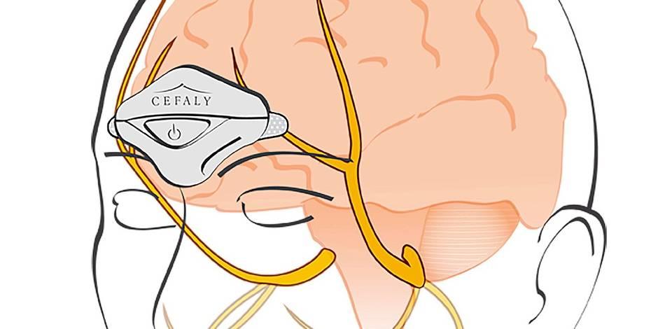 """Des """"Cefaly"""" anti-migraine pour les fonctionnaires, une ennui de santé qui touche un belge sur cinq - La DH"""