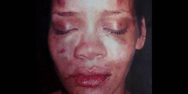 Chris Brown raconte le soir où il a frappé Rihanna - La DH
