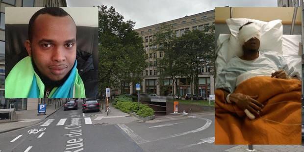 Homme énucléé en pleine rue à Ixelles: deux heures pour reconstituer les faits - La DH