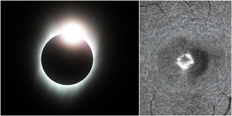 Voici les conséquences d'une exposition de quelques secondes à une éclipse solaire