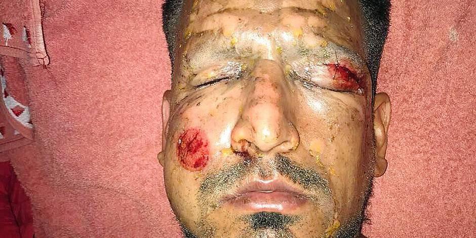 L'attaquant argentin Viatri grièvement brûlé au visage par un feu d'artifice