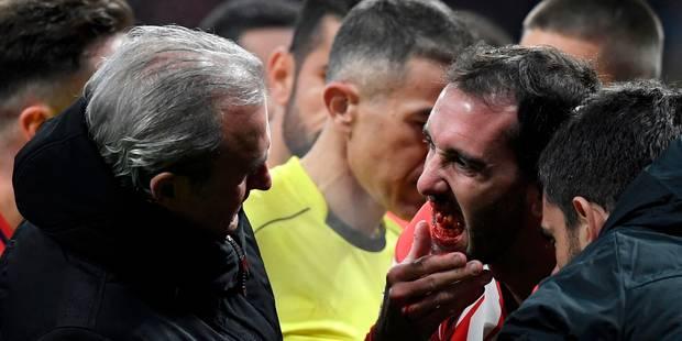Après un choc avec le gardien, Diego Godin perd... 3 dents ! - La DH