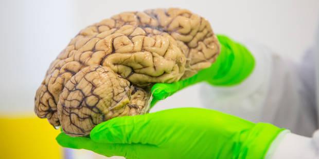 Le CHU de Liège lance un appel au don de cerveaux - La DH